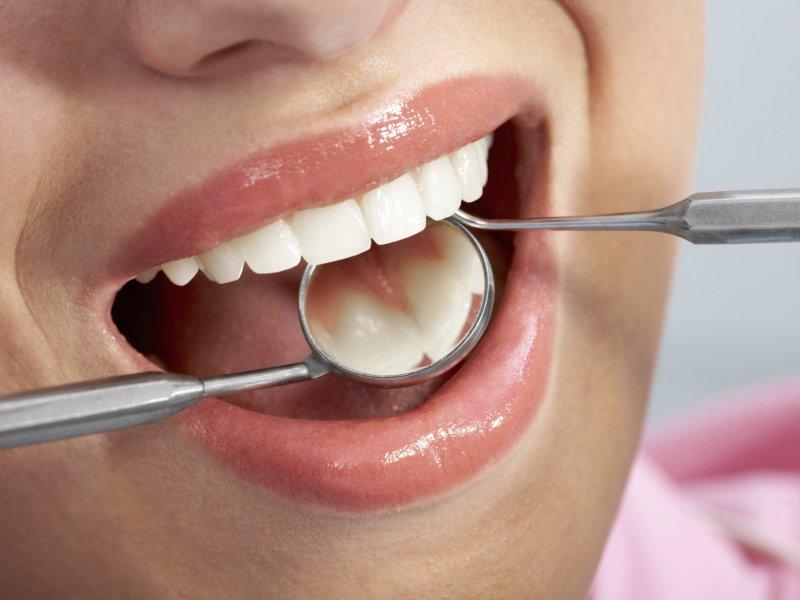 Afbeelding bij Ziekten voorkomen met een gezonde mond